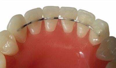 Μόνιμη ακινητοποίηση με σύρμα στην γλωσσική επιφάνεια των δοντιών