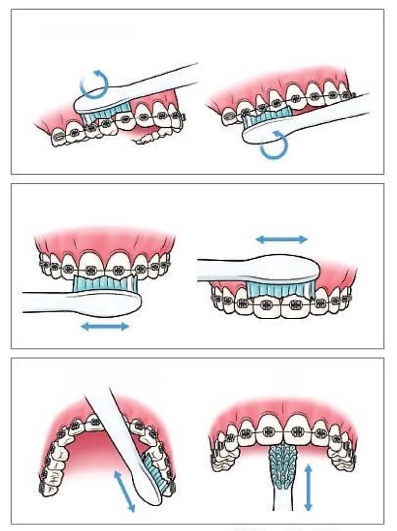 βούρτσισμα-δοντιών-με-σιδεράκια